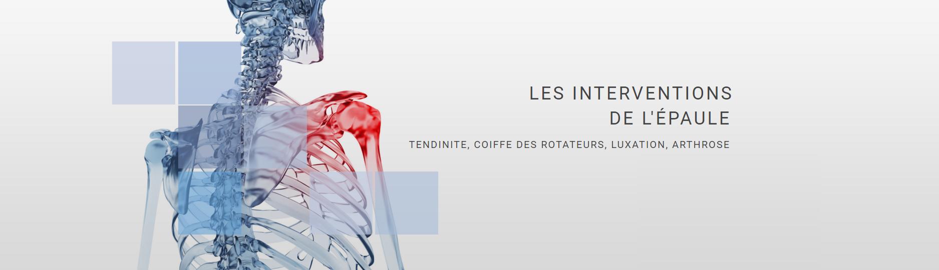 intervention-epaule-chirurgie-orthopedique-traumatologie-nice-docteur-gael-poiree-slide-1